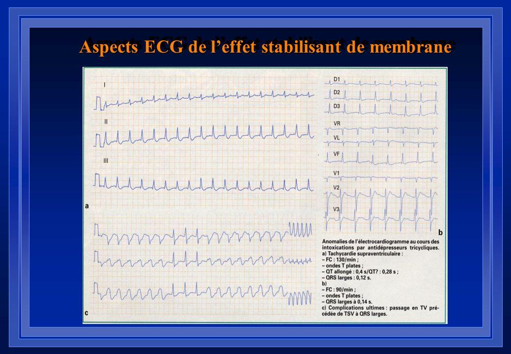 Aspects ECG de leffet stabilisant de membrane Aplatissement diffus des ondes T : signe le plus précoce Allongement du QT (QT/QT c >1): spécifique et p