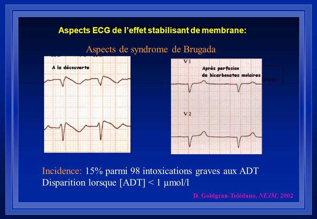 Aspects ECG de leffet stabilisant de membrane