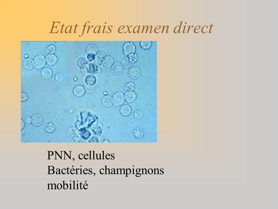 Etat frais examen direct PNN, cellules Bactéries, champignons mobilité