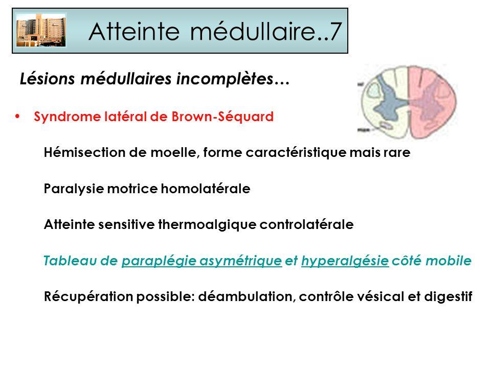 Atteinte médullaire..7 Syndrome latéral de Brown-Séquard Hémisection de moelle, forme caractéristique mais rare Paralysie motrice homolatérale Atteint
