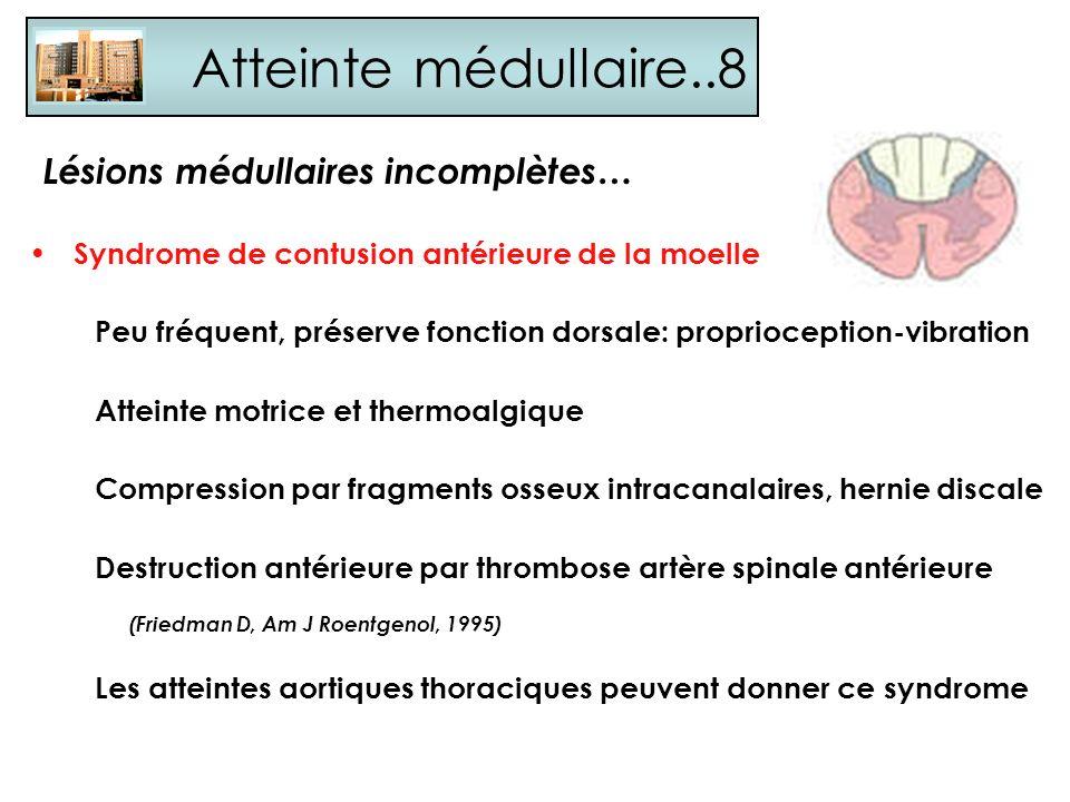 Atteinte médullaire..8 Syndrome de contusion antérieure de la moelle Peu fréquent, préserve fonction dorsale: proprioception-vibration Atteinte motric