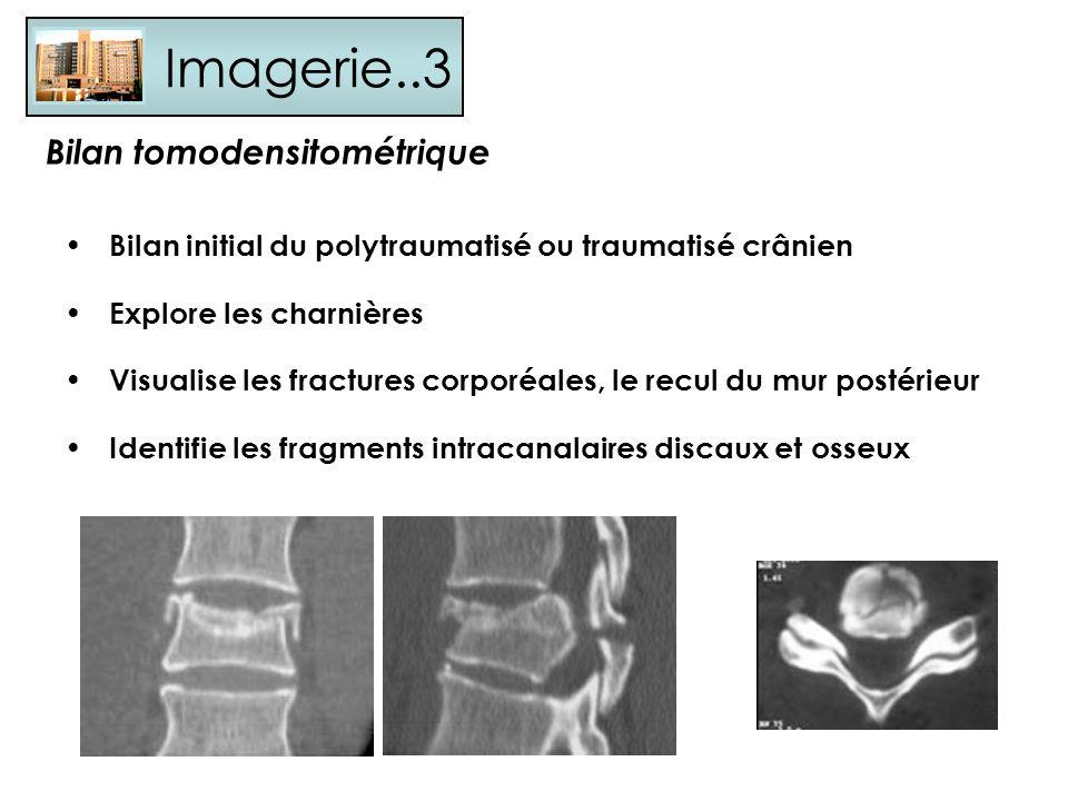 Imagerie..3 Bilan initial du polytraumatisé ou traumatisé crânien Explore les charnières Visualise les fractures corporéales, le recul du mur postérie