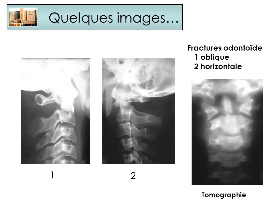 Quelques images… Fractures odontoïde 1 oblique 2 horizontale 1 2 Tomographie