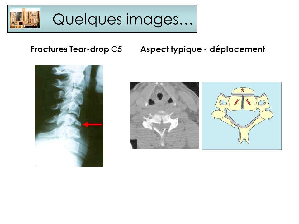 Quelques images… Fractures Tear-drop C5Aspect typique - déplacement