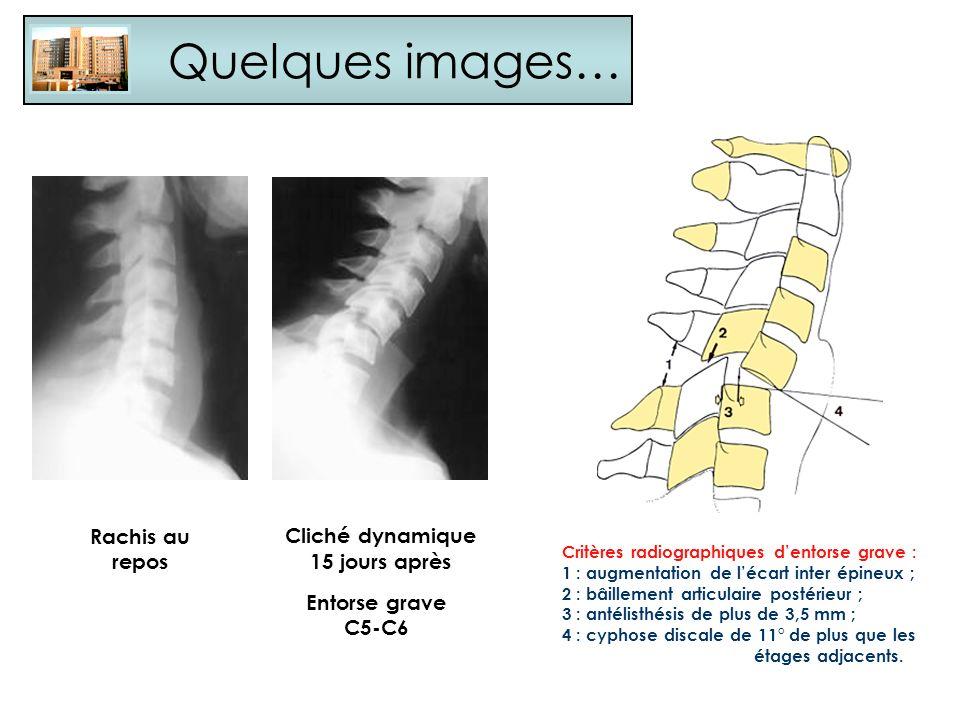 Critères radiographiques dentorse grave : 1 : augmentation de lécart inter épineux ; 2 : bâillement articulaire postérieur ; 3 : antélisthésis de plus