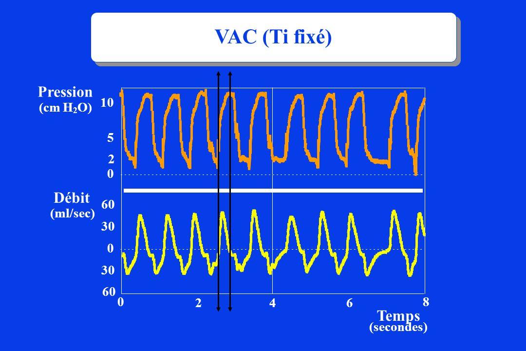 (secondes) Temps Débit (ml/sec) Pression (cm H 2 O) VAC (Ti fixé) 0 4 2 6 8 30 60 0 0 2 10 5