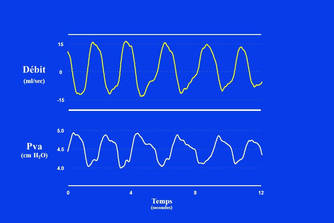 (ml/sec) Débit 048 -15 0 15 4.0 4.5 5.0 12 (secondes) Temps (cm H 2 O) Pva