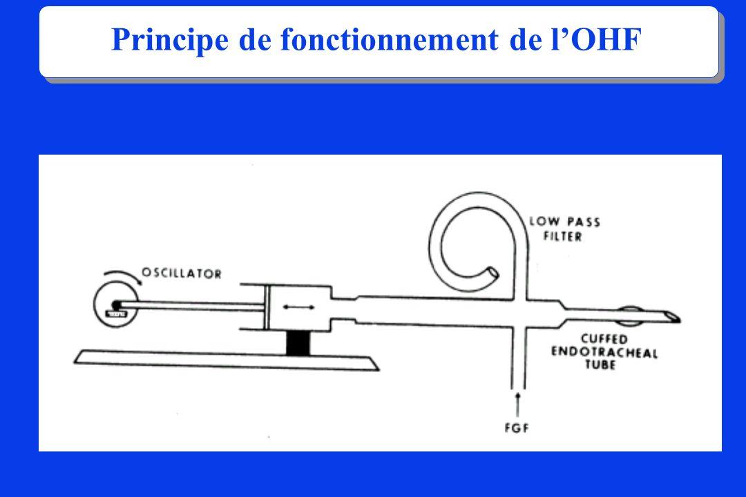 Principe de fonctionnement de lOHF
