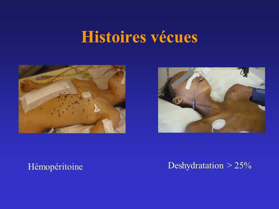Histoires vécues Hémopéritoine Deshydratation > 25%
