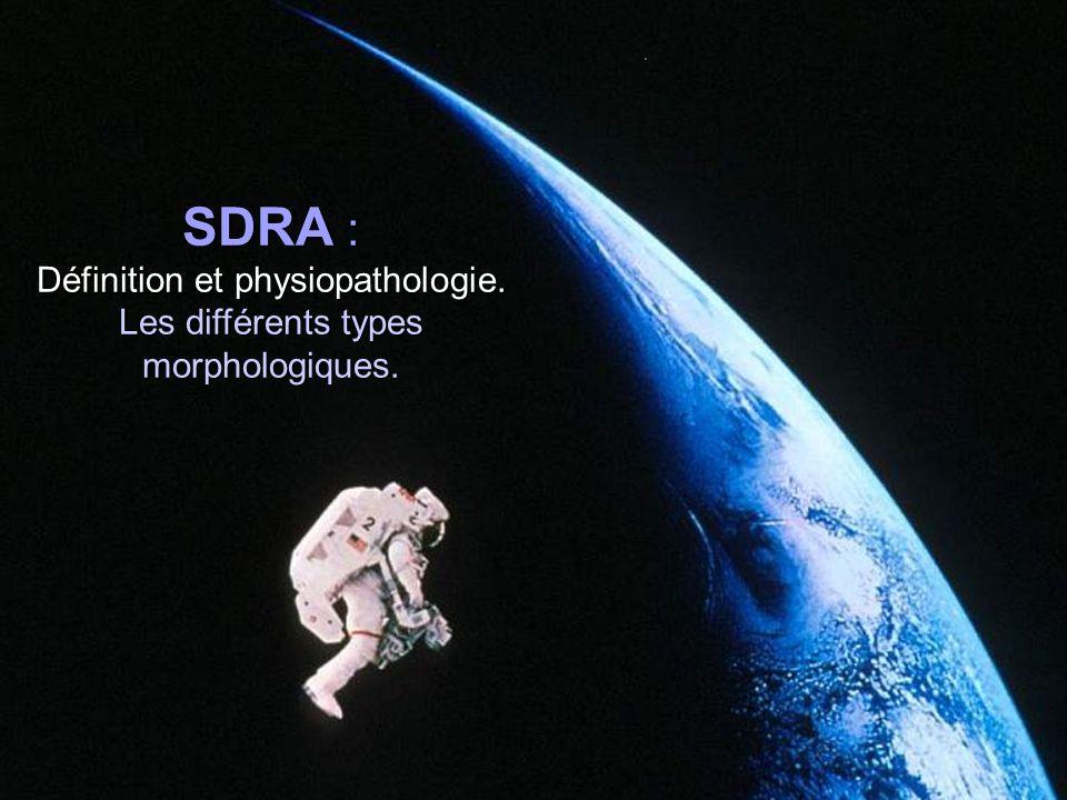 SDRA augmentation de perméabilité de la barrière alvéolo-capillaire Œdème pulmonaire de type lésionnel Augmentation du poids pulmonaire Perte massive daération