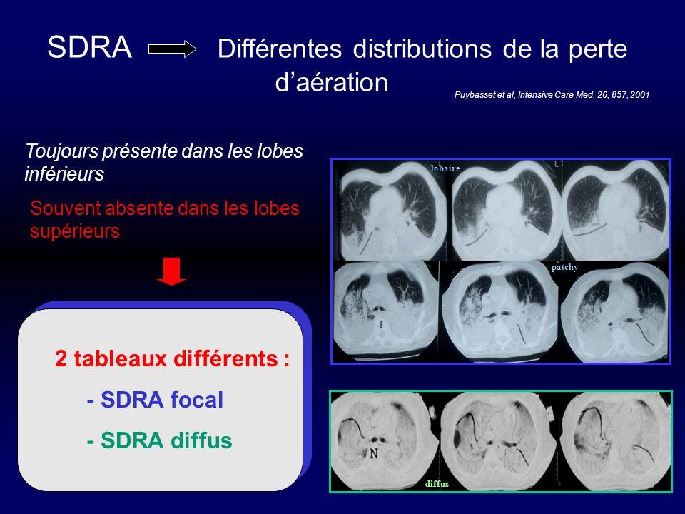 SDRA Différentes distributions de la perte daération Toujours présente dans les lobes inférieurs 2 tableaux différents : - SDRA focal - SDRA diffus Pu