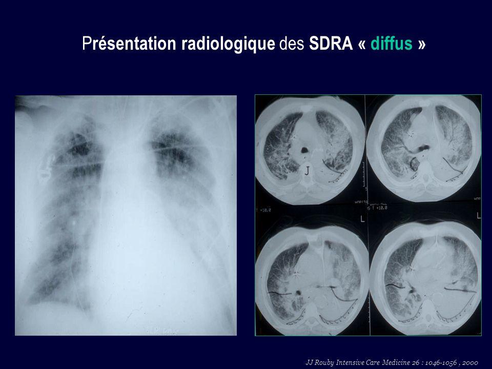 P résentation radiologique des SDRA « diffus » JJ Rouby Intensive Care Medicine 26 : 1046-1056, 2000