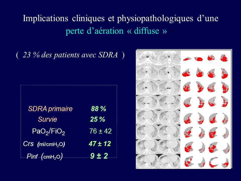 SDRA primaire 88 % Survie 25 % 47 ± 12 PaO 2 / FiO 2 76 ± 42 Crs ( ml/cmH 2 O ) 47 ± 12 P inf ( cmH 2 O ) 9 ± 2 Implications cliniques et physiopathol