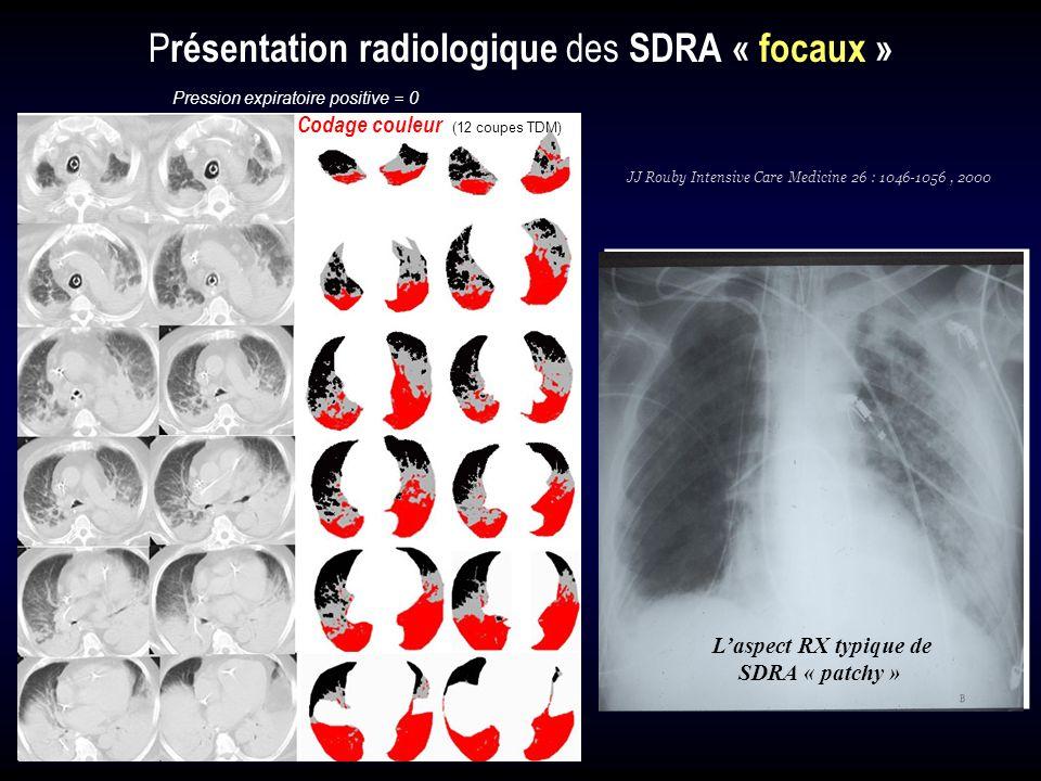 Laspect RX typique de SDRA « patchy » Codage couleur (12 coupes TDM) Pression expiratoire positive = 0 P résentation radiologique des SDRA « focaux »