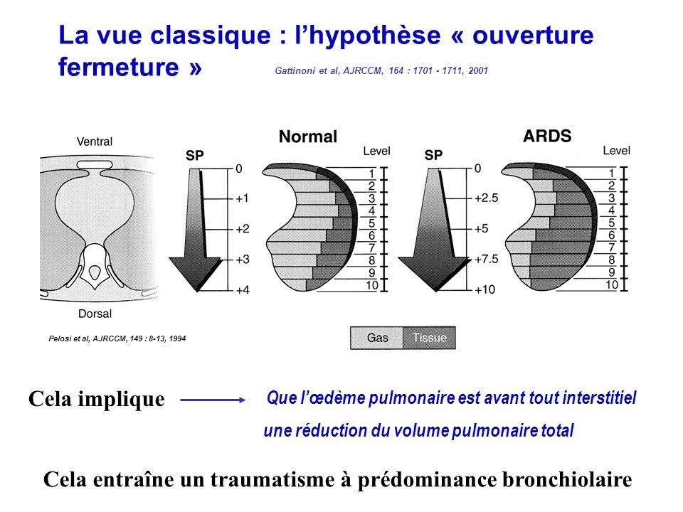 La vue classique : lhypothèse « ouverture fermeture » Pelosi et al, AJRCCM, 149 : 8-13, 1994 Gattinoni et al, AJRCCM, 164 : 1701 - 1711, 2001 Cela imp