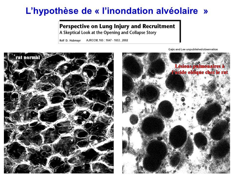 Entrainant un barotraumatisme alvéolaire Lhypothèse de « linondation alvéolaire » AJRCCM, 165 : 1647 - 1653, 2002 proteïn-rich edema Macrophage fibrob