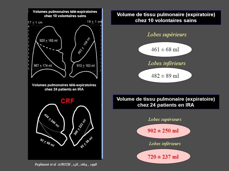 Volume de tissu pulmonaire (expiratoire) chez 10 volontaires sains Lobes supérieurs Lobes inférieurs 461 ± 68 ml 482 ± 89 ml Volume de tissu pulmonair
