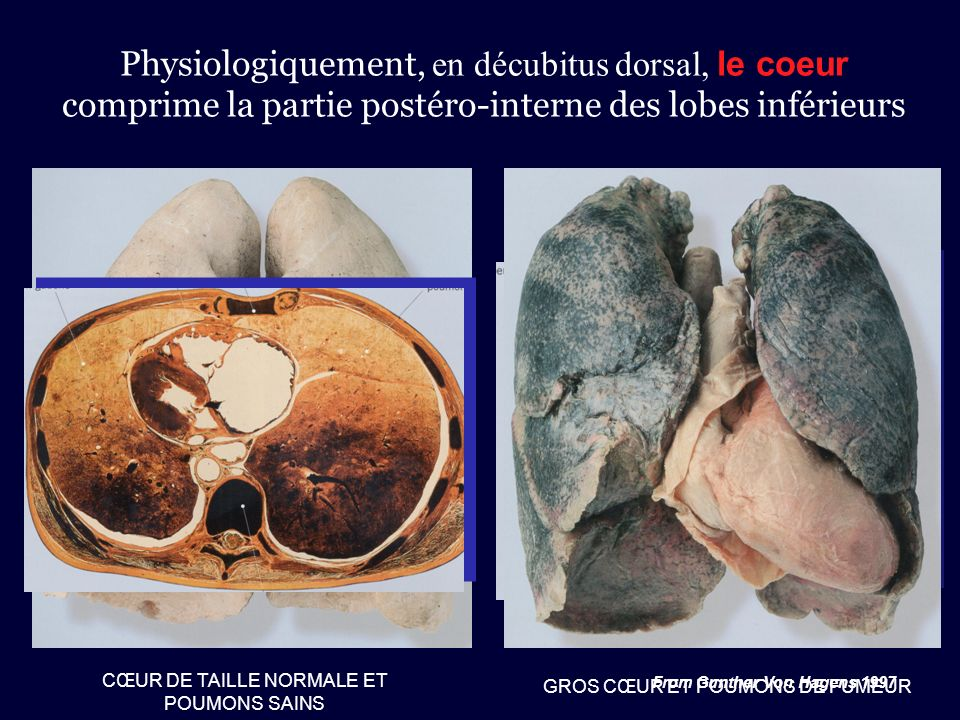 CŒUR DE TAILLE NORMALE ET POUMONS SAINS Physiologiquement, en décubitus dorsal, le coeur comprime la partie postéro-interne des lobes inférieurs From