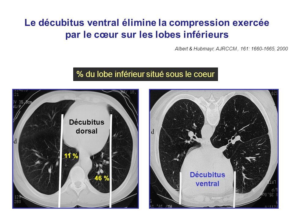 Le décubitus ventral élimine la compression exercée par le cœur sur les lobes inférieurs Albert & Hubmayr, AJRCCM, 161: 1660-1665, 2000 Décubitus dors
