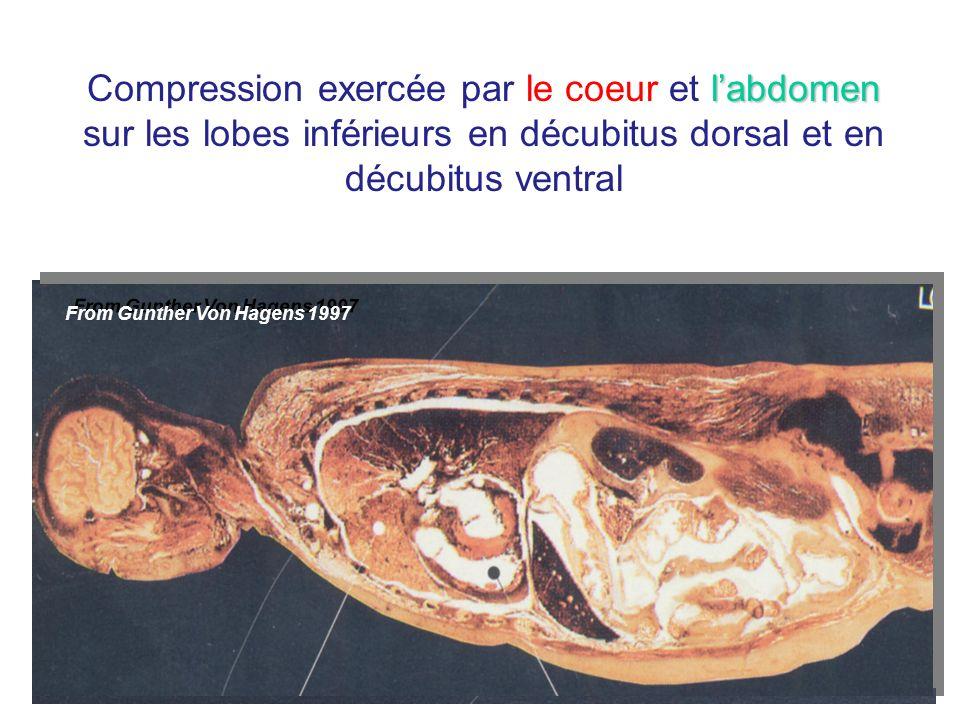 From Gunther Von Hagens 1997 labdomen Compression exercée par le coeur et labdomen sur les lobes inférieurs en décubitus dorsal et en décubitus ventra