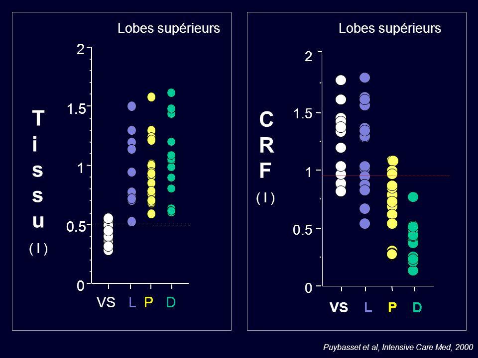 Puybasset et al, Intensive Care Med, 2000 0 0.5 1 1.5 2 VS L P D CRFCRF ( l ) Lobes supérieurs 0 0.5 1 1.5 2 VS L P D Lobes supérieurs TissuTissu ( l