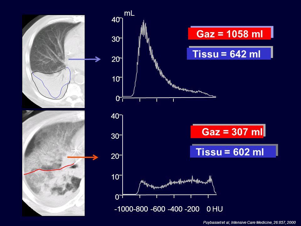Gaz = 1058 ml Tissu = 642 ml 0 10 20 30 40 mL 0 10 20 30 40 -1000-800-600-400-2000HU Gaz = 307 ml Tissu = 602 ml Puybasset et al, Intensive Care Medic