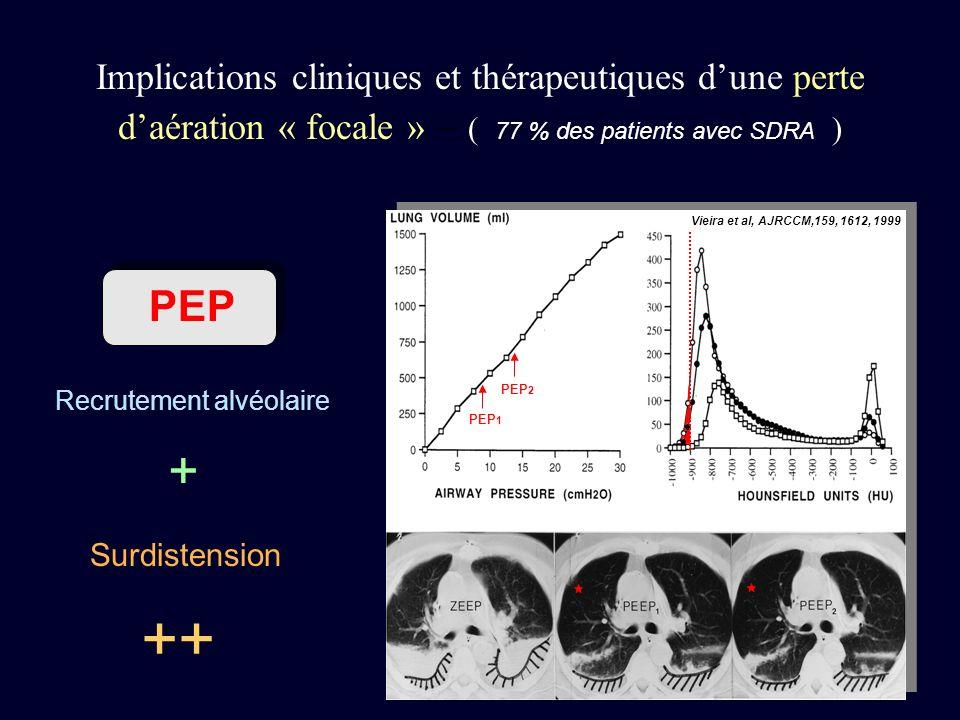 Vieira et al, AJRCCM,159, 1612, 1999 PEP 1 PEP 2 Implications cliniques et thérapeutiques dune perte daération « focale » – ( 77 % des patients avec S