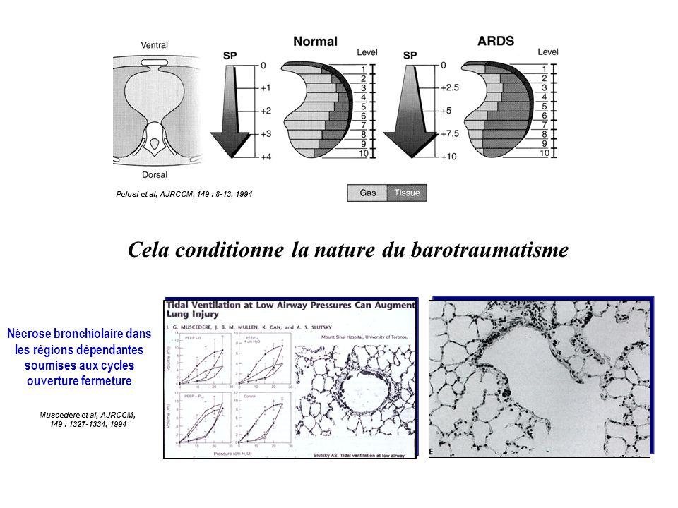 Pelosi et al, AJRCCM, 149 : 8-13, 1994 Cela conditionne la nature du barotraumatisme Nécrose bronchiolaire dans les régions dépendantes soumises aux c