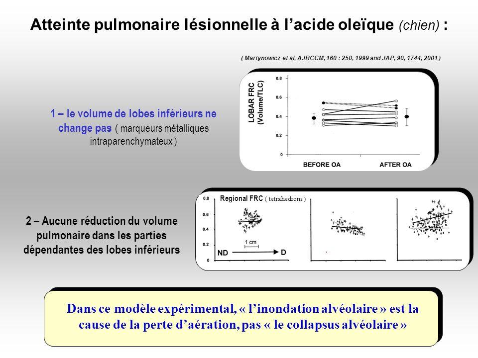Dans ce modèle expérimental, « linondation alvéolaire » est la cause de la perte daération, pas « le collapsus alvéolaire » ( Martynowicz et al, AJRCC