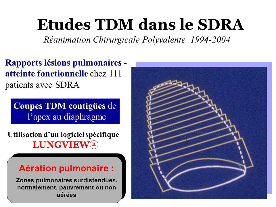 Etudes TDM dans le SDRA Réanimation Chirurgicale Polyvalente 1994-2004 Rapports lésions pulmonaires - atteinte fonctionnelle chez 111 patients avec SD