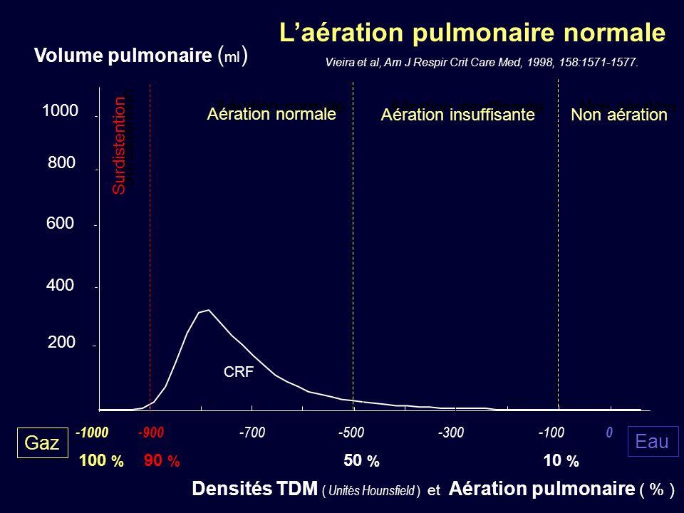 Laération pulmonaire normale Vieira et al, Am J Respir Crit Care Med, 1998, 158:1571-1577. 200 400 600 800 1000 -1000-900 -700-500-300-100 0 Volume pu