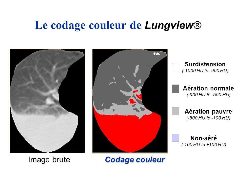Le codage couleur de Lungview® Image brute Aération pauvre (-500 HU to -100 HU) Codage couleur Non-aéré (-100 HU to +100 HU) Surdistension (-1000 HU t