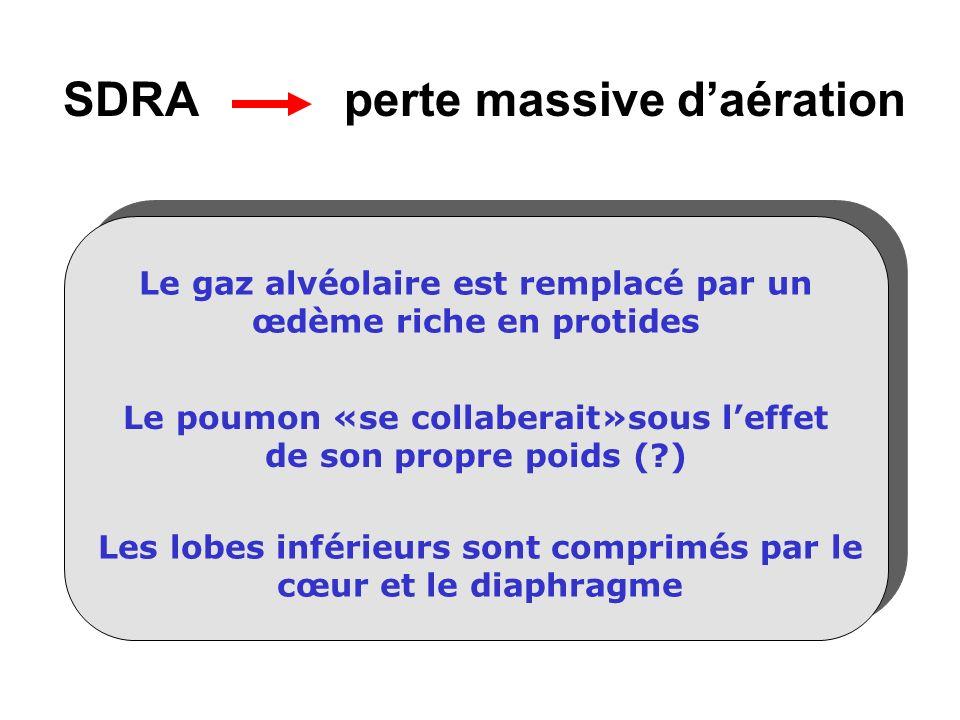 SDRA perte massive daération Le gaz alvéolaire est remplacé par un œdème riche en protides Le poumon «se collaberait»sous leffet de son propre poids (