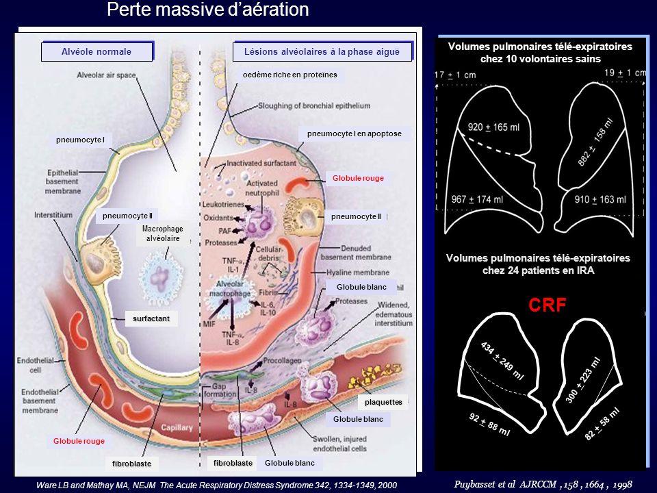 Perte massive daération Ware LB and Mathay MA, NEJM The Acute Respiratory Distress Syndrome 342, 1334-1349, 2000 Puybasset et al AJRCCM, 158, 1664, 19