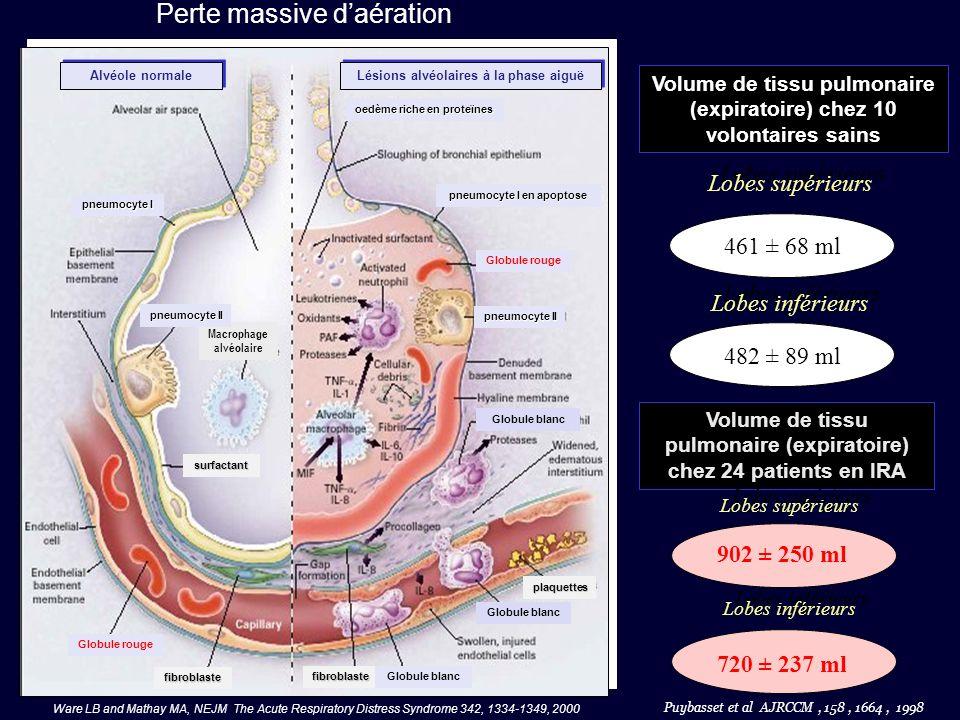 Dans ce modèle expérimental, « linondation alvéolaire » est la cause de la perte daération, pas « le collapsus alvéolaire » ( Martynowicz et al, AJRCCM, 160 : 250, 1999 and JAP, 90, 1744, 2001 ) Atteinte pulmonaire lésionnelle à lacide oleïque (chien) : 1 – le volume de lobes inférieurs ne change pas ( marqueurs métalliques intraparenchymateux ) 2 – Aucune réduction du volume pulmonaire dans les parties dépendantes des lobes inférieurs.