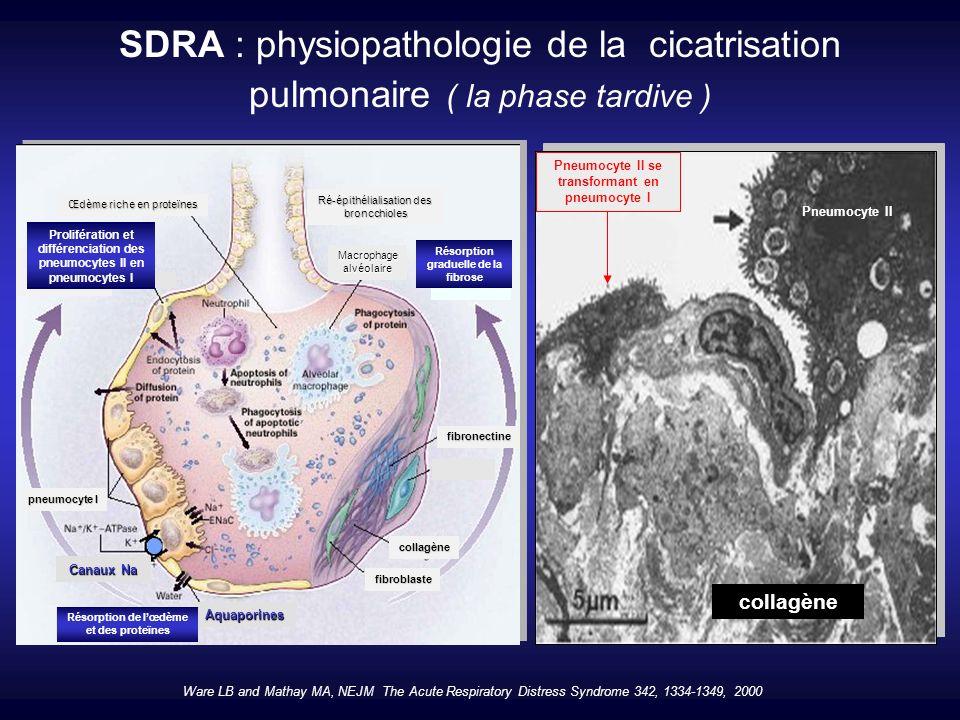Les parties du poumon apparaissant normalement aérées ont le plus souvent un excès de tissu pulmonaire…