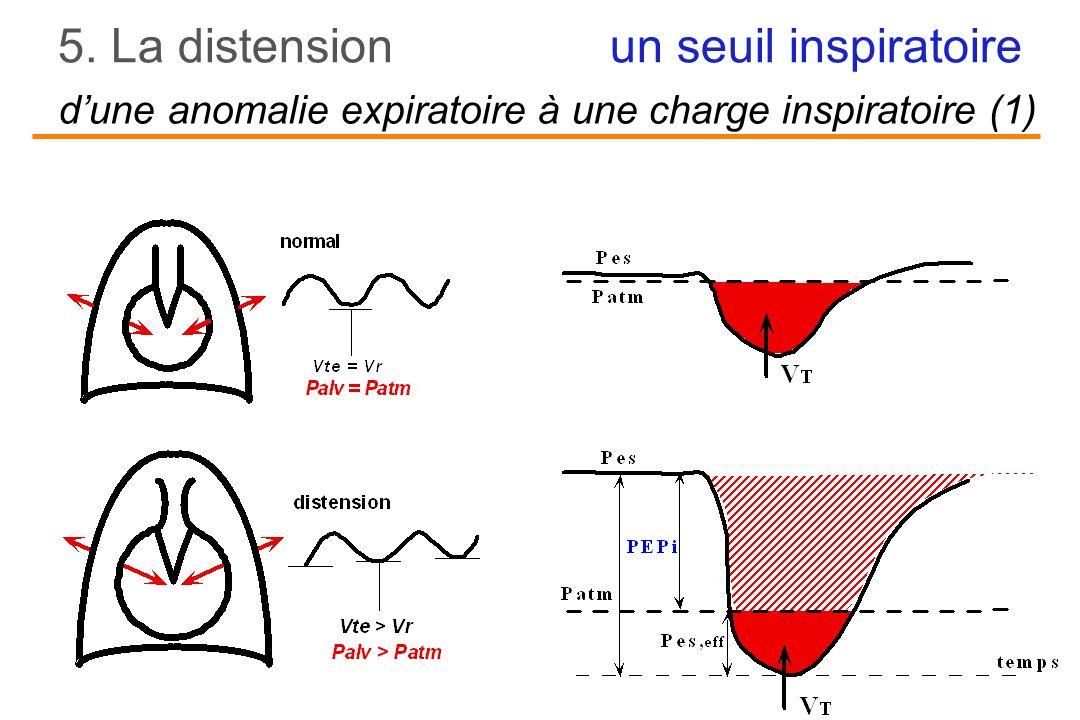 un seuil inspiratoire5. La distension dune anomalie expiratoire à une charge inspiratoire (1)