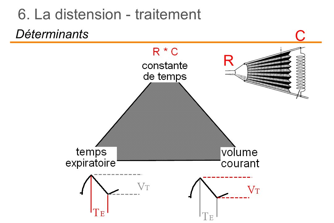 RC Déterminants 6. La distension - traitement