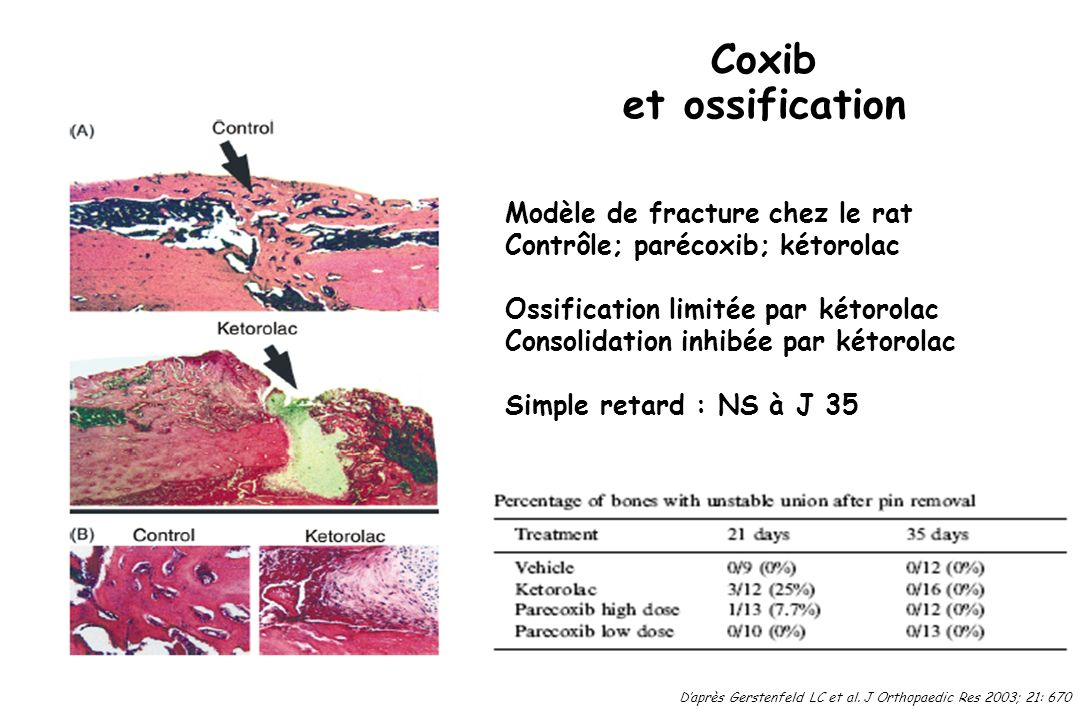 Coxib et ossification Modèle de fracture chez le rat Contrôle; parécoxib; kétorolac Ossification limitée par kétorolac Consolidation inhibée par kétor