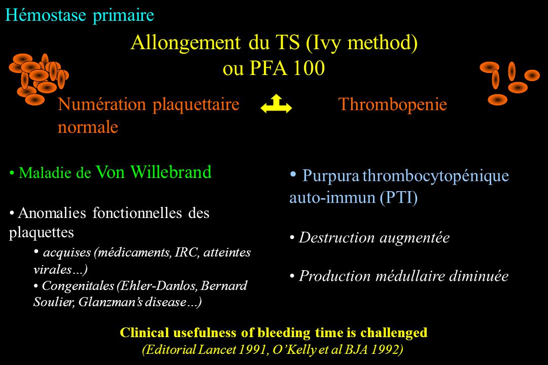Hémostase primaire Clinical usefulness of bleeding time is challenged (Editorial Lancet 1991, OKelly et al BJA 1992) Allongement du TS (Ivy method) ou