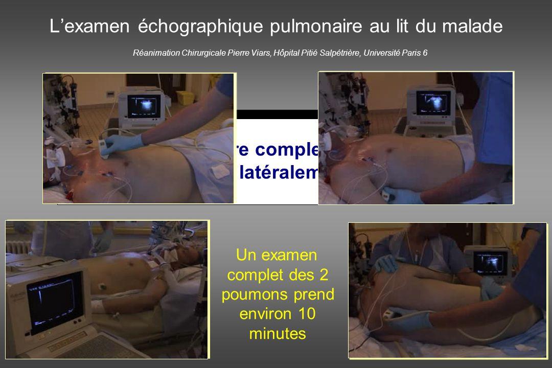 Réanimation Chirurgicale Pierre Viars, Hôpital Pitié Salpétrière, Université Paris 6 Un examen complet des 2 poumons prend environ 10 minutes Lexamen