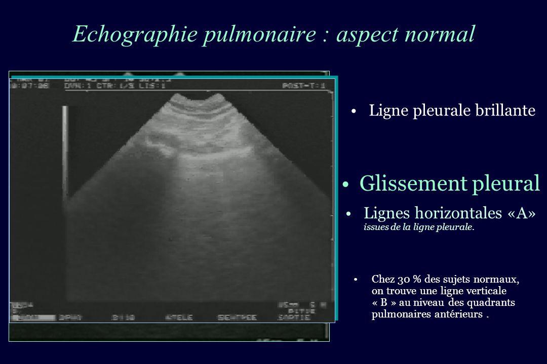 Echographie pulmonaire : aspect normal Chez 30 % des sujets normaux, on trouve une ligne verticale « B » au niveau des quadrants pulmonaires antérieur