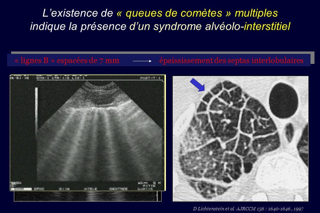 Lexistence de « queues de comètes » multiples indique la présence dun syndrome alvéolo-interstitiel D Lichtenstein et al AJRCCM 156 : 1640-1646, 1997