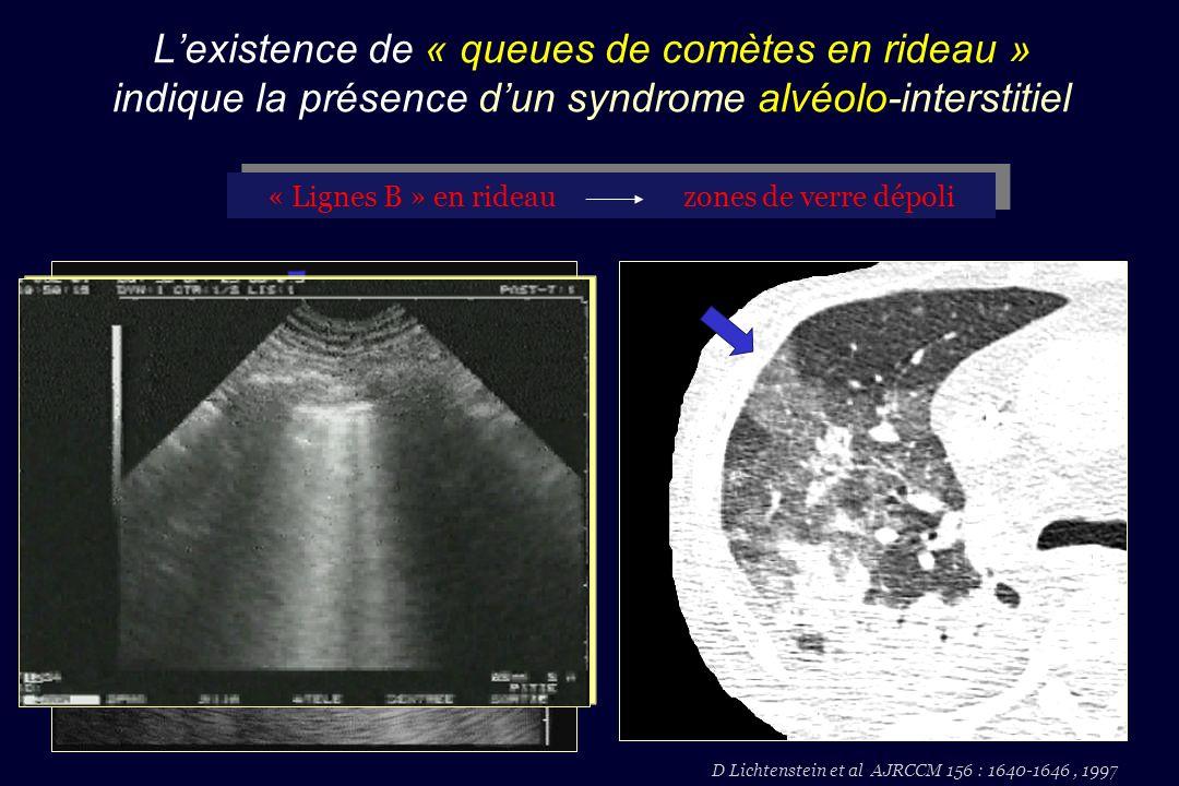 D Lichtenstein et al AJRCCM 156 : 1640-1646, 1997 « Lignes B » en rideau zones de verre dépoli Lexistence de « queues de comètes en rideau » indique l