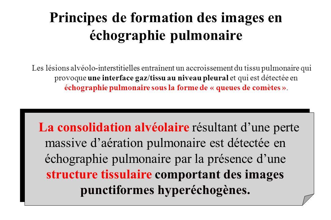 La consolidation alvéolaire résultant dune perte massive daération pulmonaire est détectée en échographie pulmonaire par la présence dune structure ti