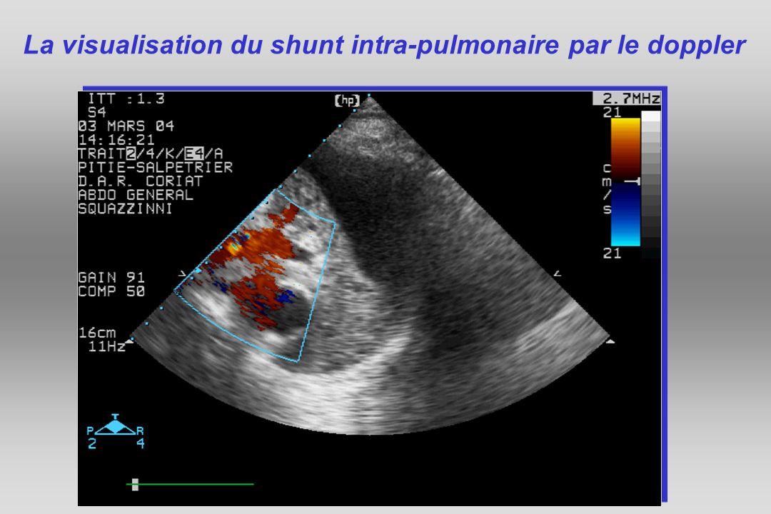 coupole La visualisation du shunt intra-pulmonaire par le doppler