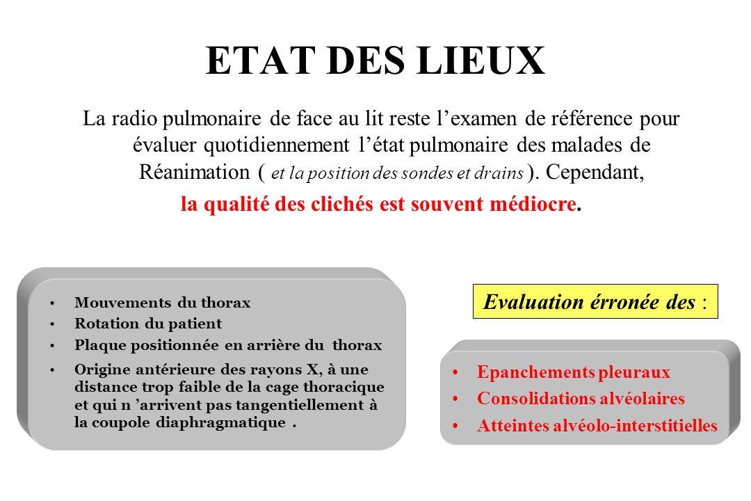 ETAT DES LIEUX La radio pulmonaire de face au lit reste lexamen de référence pour évaluer quotidiennement létat pulmonaire des malades de Réanimation