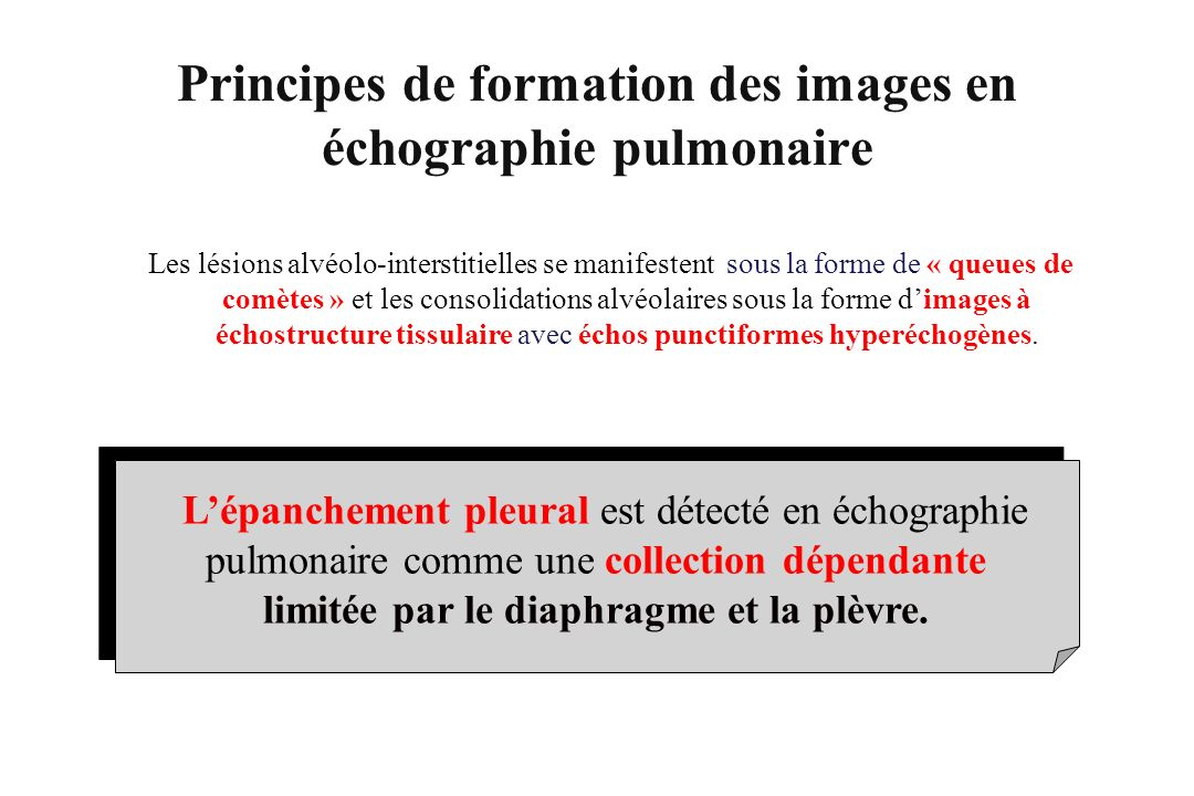 Lépanchement pleural est détecté en échographie pulmonaire comme une collection dépendante limitée par le diaphragme et la plèvre. Les lésions alvéolo