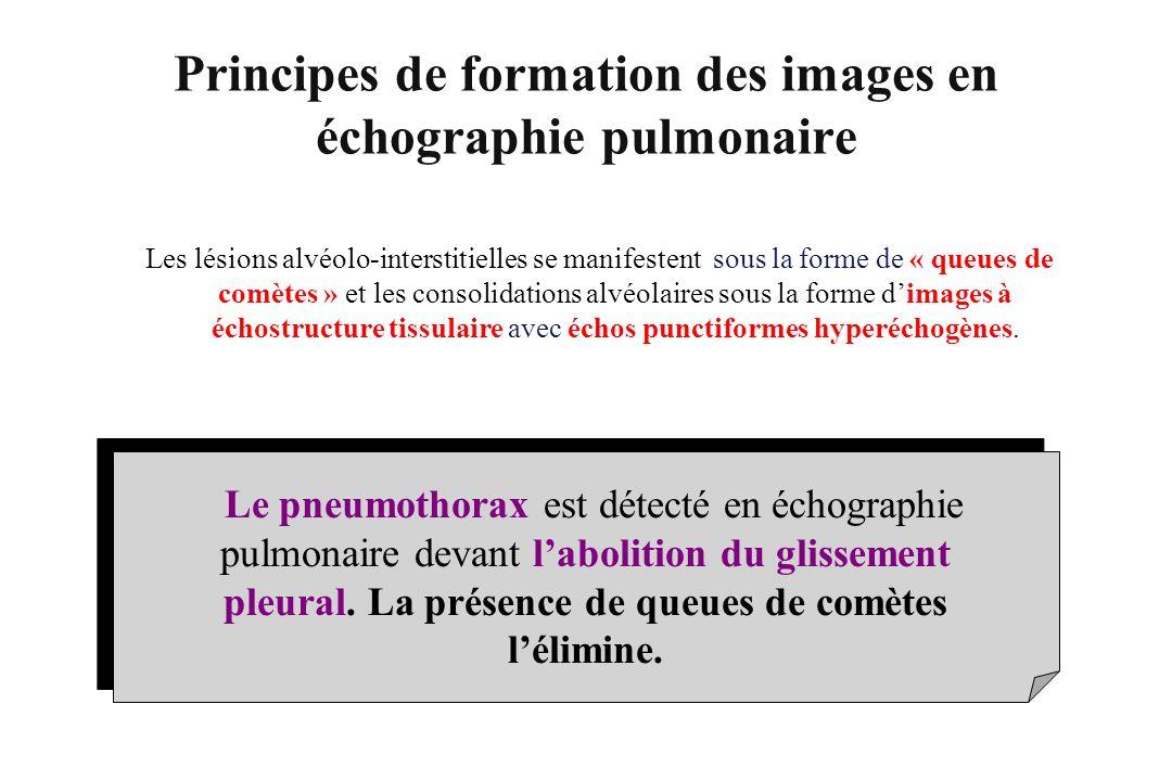 Le pneumothorax est détecté en échographie pulmonaire devant labolition du glissement pleural. La présence de queues de comètes lélimine. Les lésions