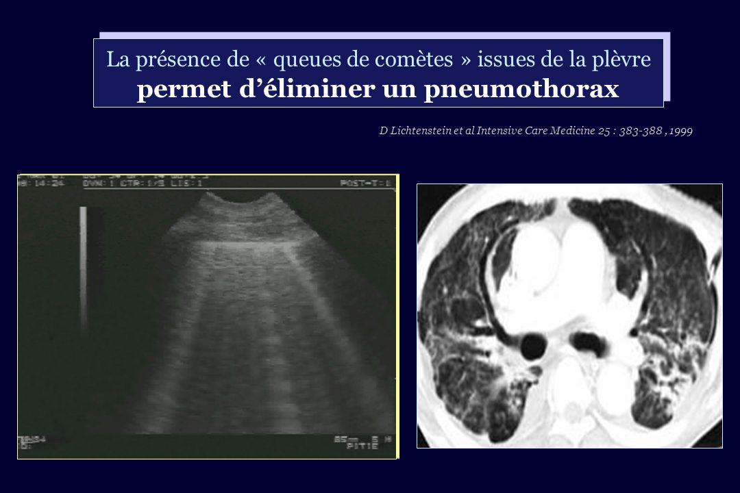 La présence de « queues de comètes » issues de la plèvre permet déliminer un pneumothorax D Lichtenstein et al Intensive Care Medicine 25 : 383-388, 1